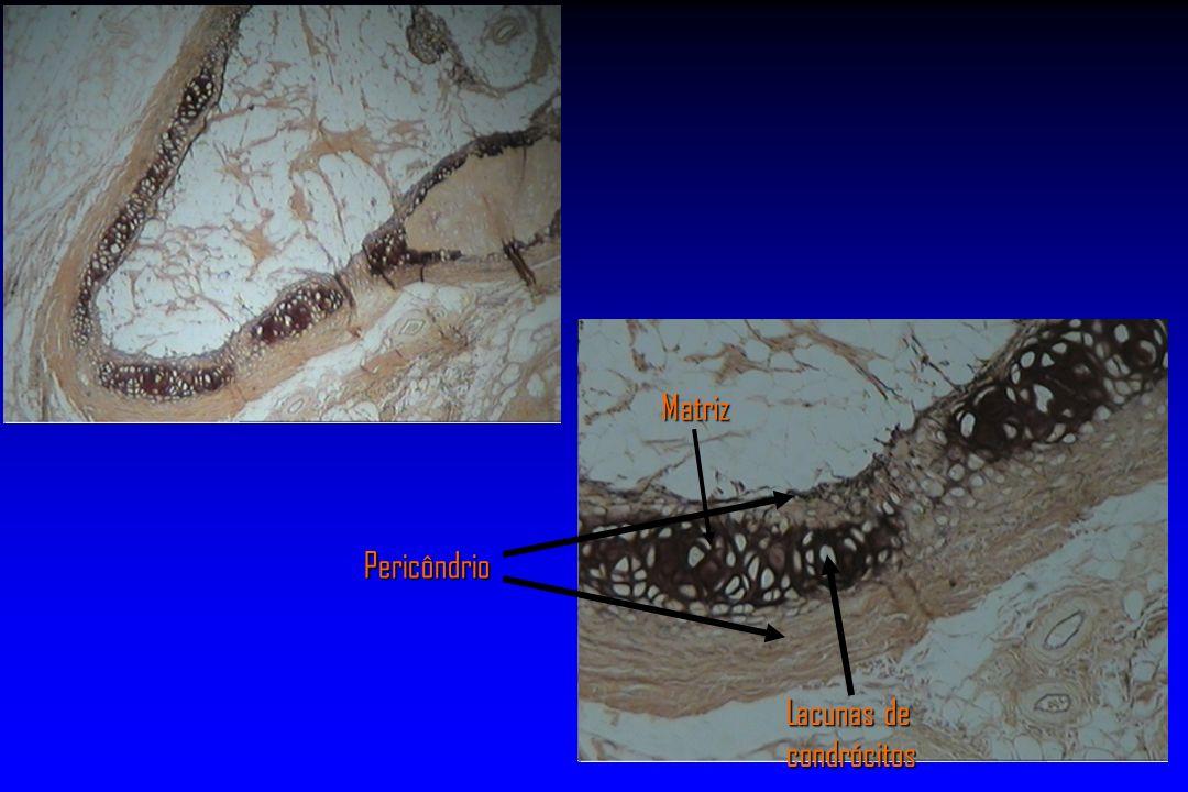 Pericôndrio Matriz Lacunas de condrócitos