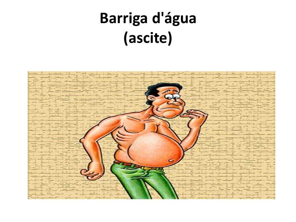 Barriga d'água (ascite)