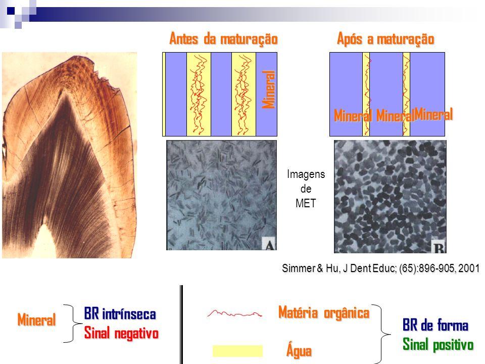 Antes da maturação Após a maturação MineralMineral Mineral Mineral Água Matéria orgânica Simmer & Hu, J Dent Educ; (65):896-905, 2001 Imagens de MET B