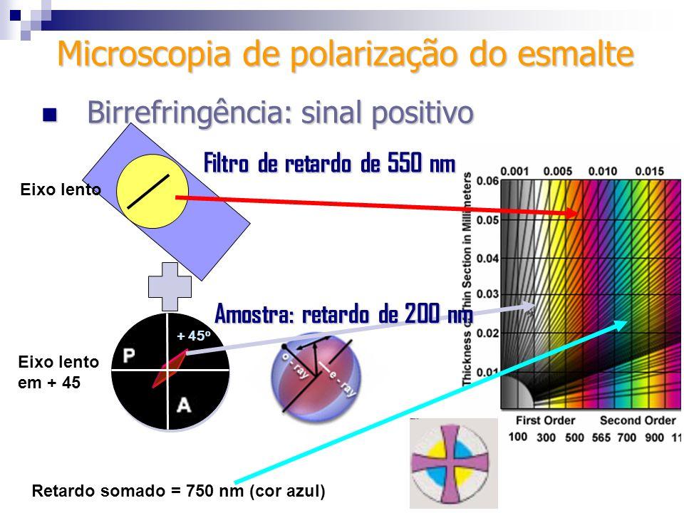 + 45 o Filtro de retardo de 550 nm Eixo lento em + 45 Retardo somado = 750 nm (cor azul) Amostra: retardo de 200 nm Microscopia de polarização do esma