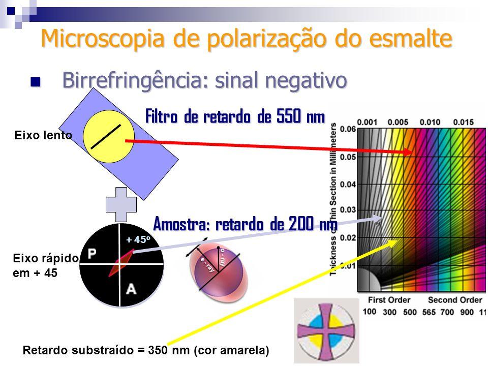 + 45 o Filtro de retardo de 550 nm Eixo lento Eixo rápido em + 45 Retardo substraído = 350 nm (cor amarela) Amostra: retardo de 200 nm Microscopia de