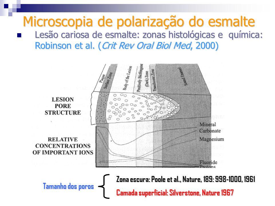 Microscopia de polarização do esmalte Lesão cariosa de esmalte: zonas histológicas e química: Robinson et al. (Crit Rev Oral Biol Med, 2000) Lesão car
