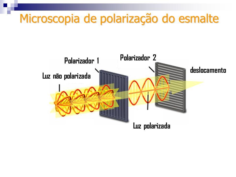 Luz não polarizada Polarizador 1 Polarizador 2 Luz polarizada Microscopia de polarização do esmalte deslocamento