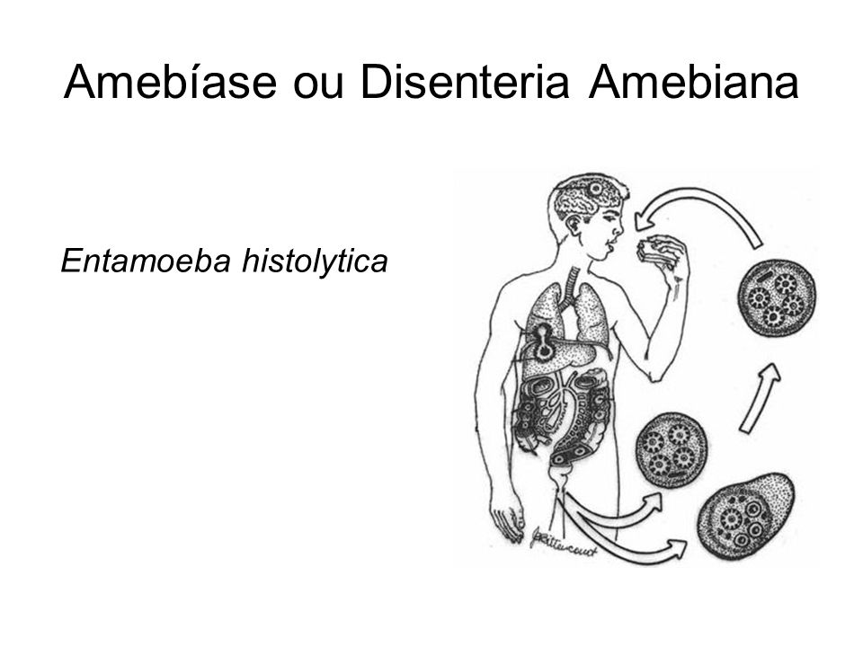 Amebíase ou Disenteria Amebiana Entamoeba histolytica