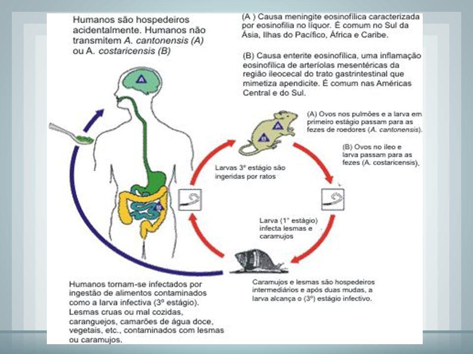 MOLUSCOS O caramujo africano causa a angiostrongilíase meningoencefálica humana e a angiostrongilíase abdominal. Os sintomas são constantes dores de c