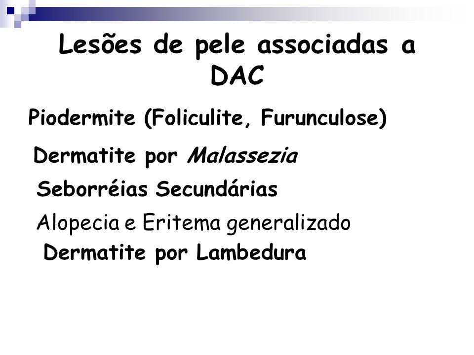 Lesões de pele associadas a DAC Piodermite (Foliculite, Furunculose) Dermatite por Malassezia Seborréias Secundárias Alopecia e Eritema generalizado D