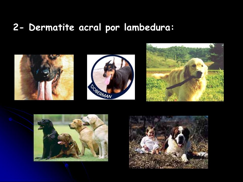 2- Dermatite acral por lambedura: