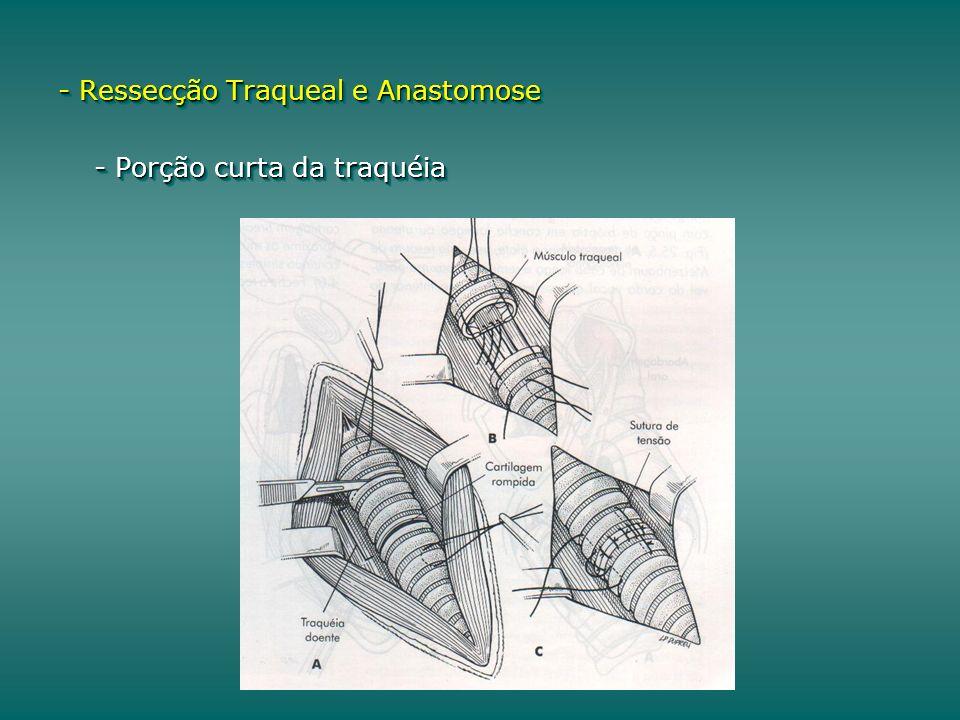 - Ressecção Traqueal e Anastomose - Porção curta da traquéia - Ressecção Traqueal e Anastomose - Porção curta da traquéia