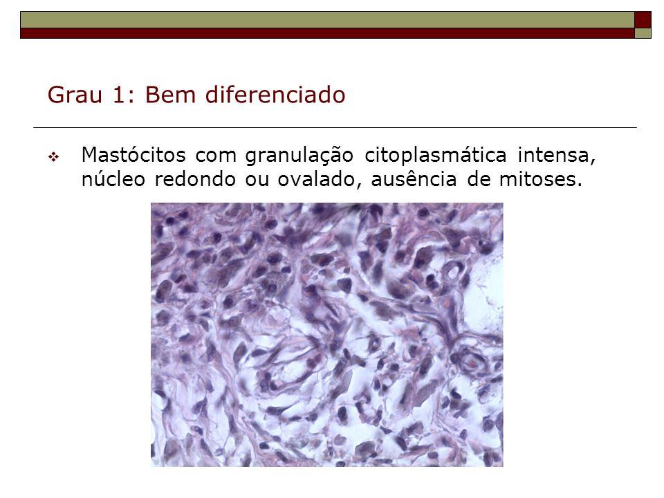 Grau 1: Bem diferenciado Mastócitos com granulação citoplasmática intensa, núcleo redondo ou ovalado, ausência de mitoses.