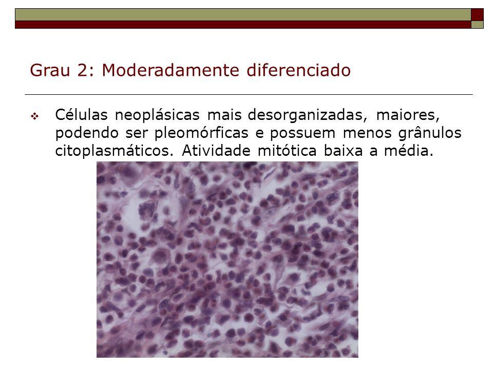 Grau 2: Moderadamente diferenciado Células neoplásicas mais desorganizadas, maiores, podendo ser pleomórficas e possuem menos grânulos citoplasmáticos
