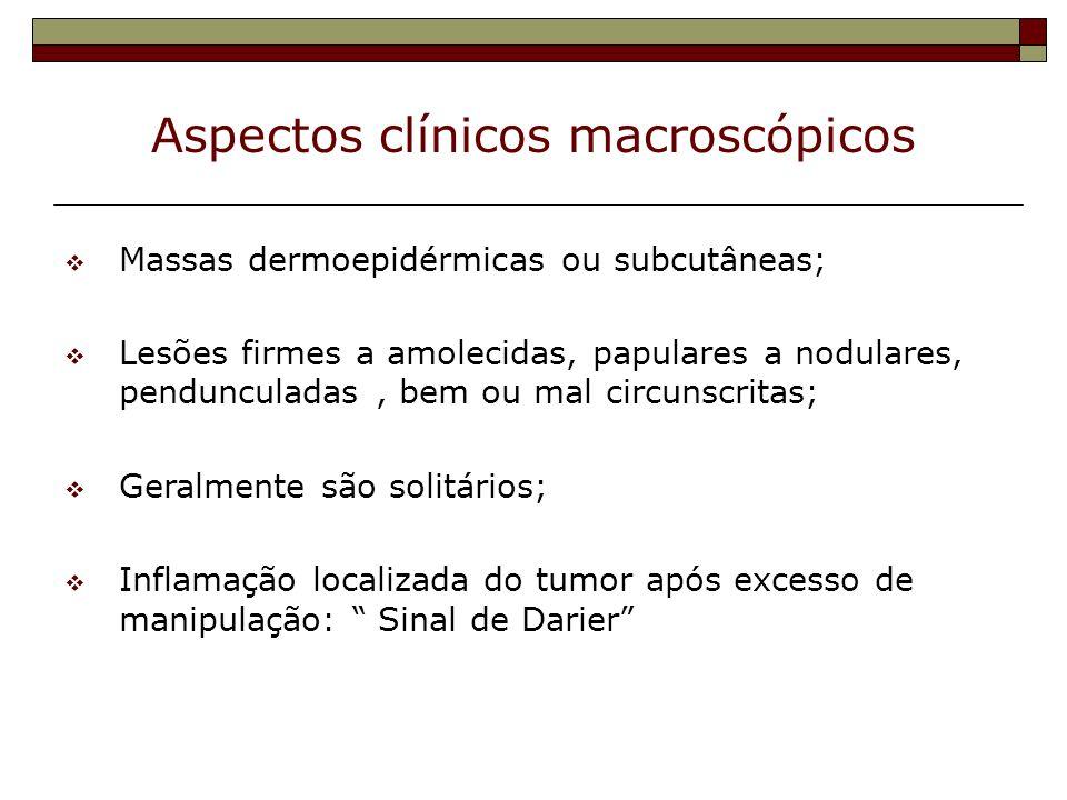 Aspectos clínicos macroscópicos Massas dermoepidérmicas ou subcutâneas; Lesões firmes a amolecidas, papulares a nodulares, pendunculadas, bem ou mal c