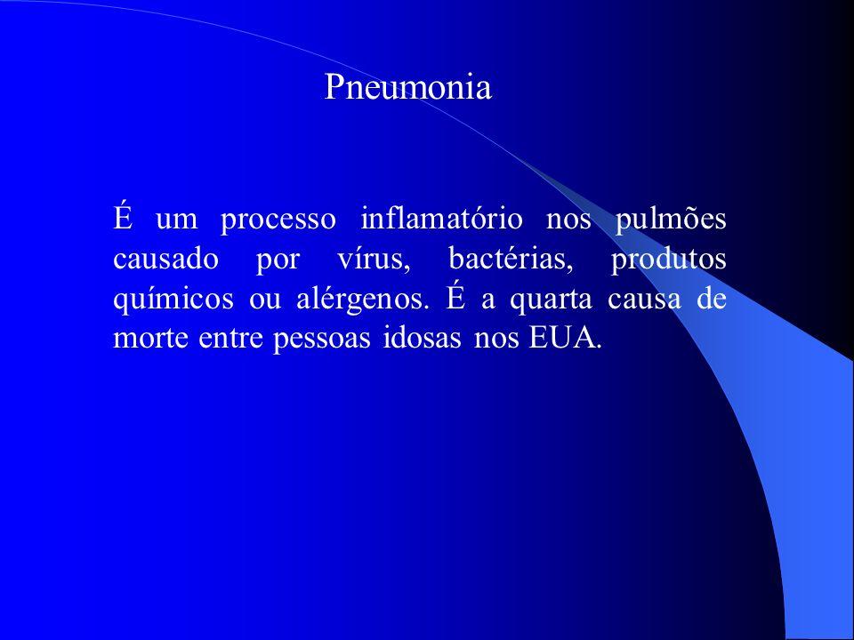 Pneumonia É um processo inflamatório nos pulmões causado por vírus, bactérias, produtos químicos ou alérgenos. É a quarta causa de morte entre pessoas