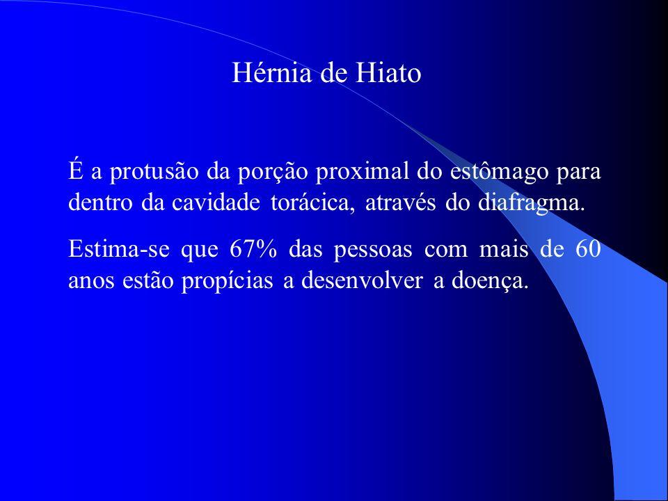 Hérnia de Hiato É a protusão da porção proximal do estômago para dentro da cavidade torácica, através do diafragma. Estima-se que 67% das pessoas com