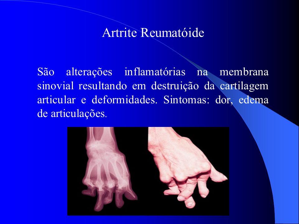 Artrite Reumatóide São alterações inflamatórias na membrana sinovial resultando em destruição da cartilagem articular e deformidades. Sintomas: dor, e