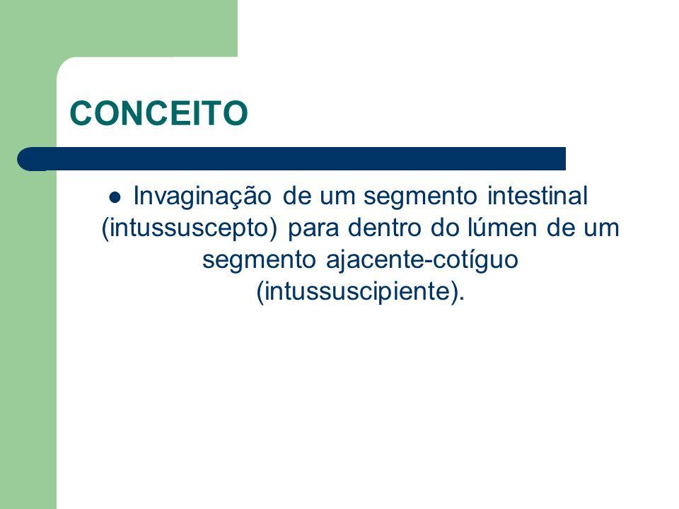 CONCEITO Invaginação de um segmento intestinal (intussuscepto) para dentro do lúmen de um segmento ajacente-cotíguo (intussuscipiente).
