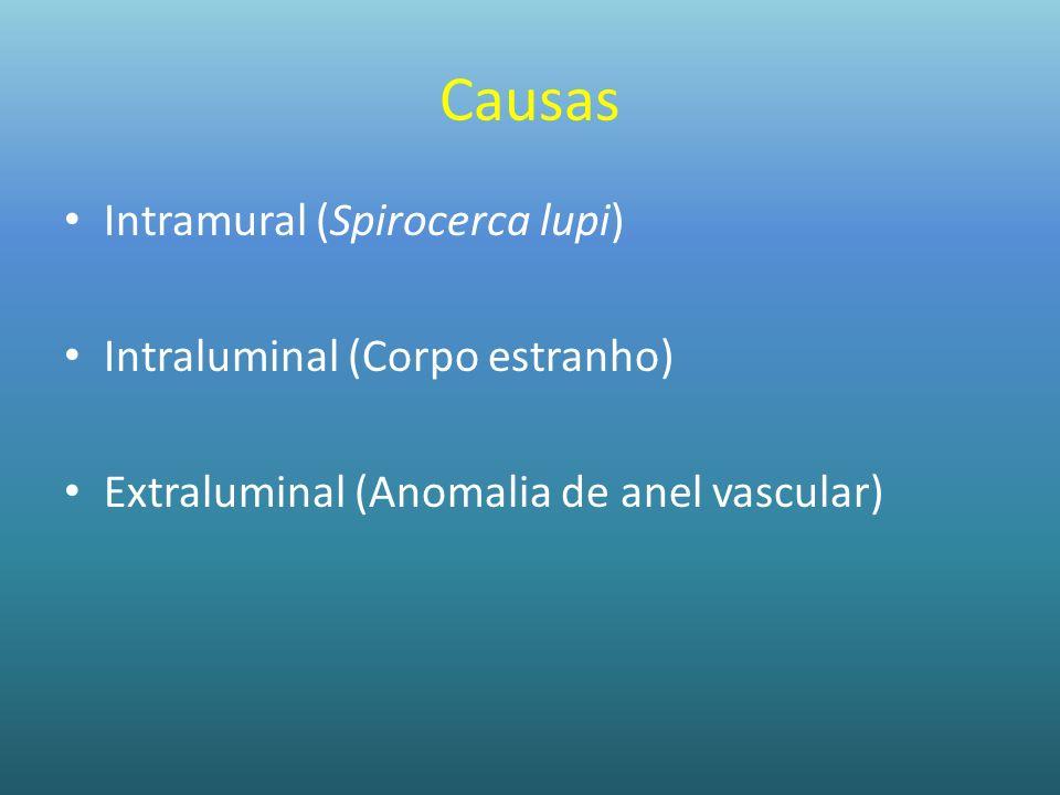 Causas Intramural (Spirocerca lupi) Intraluminal (Corpo estranho) Extraluminal (Anomalia de anel vascular)