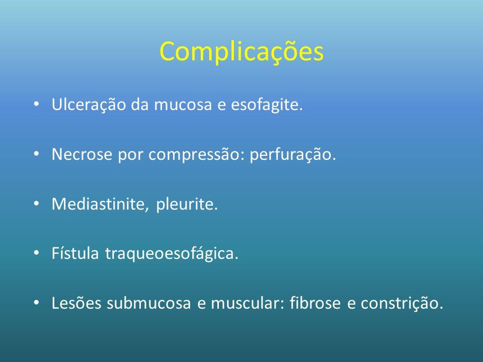 Complicações Ulceração da mucosa e esofagite. Necrose por compressão: perfuração. Mediastinite, pleurite. Fístula traqueoesofágica. Lesões submucosa e