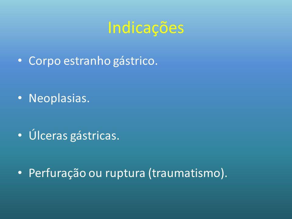 Indicações Corpo estranho gástrico. Neoplasias. Úlceras gástricas. Perfuração ou ruptura (traumatismo).