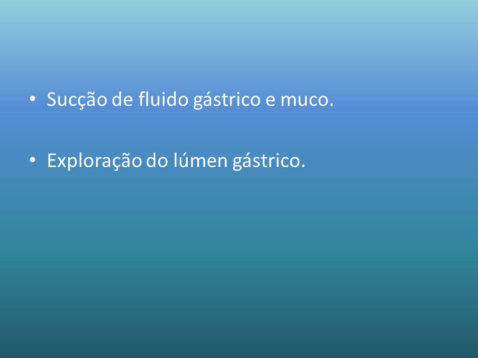 Sucção de fluido gástrico e muco. Exploração do lúmen gástrico.