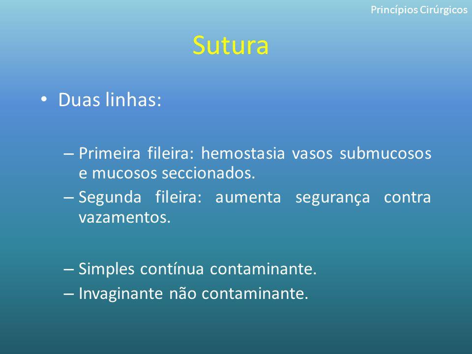 Sutura Duas linhas: – Primeira fileira: hemostasia vasos submucosos e mucosos seccionados. – Segunda fileira: aumenta segurança contra vazamentos. – S