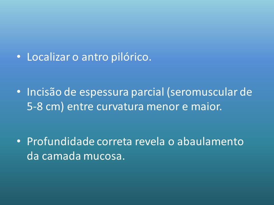 Localizar o antro pilórico. Incisão de espessura parcial (seromuscular de 5-8 cm) entre curvatura menor e maior. Profundidade correta revela o abaulam