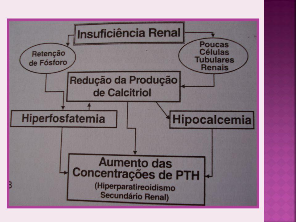 CLINICAMENTE DESMINERALIZAÇÃO ÓSSEA MAXILAR E MANDÍBULA Plano nasal, facial e arco zigomático.