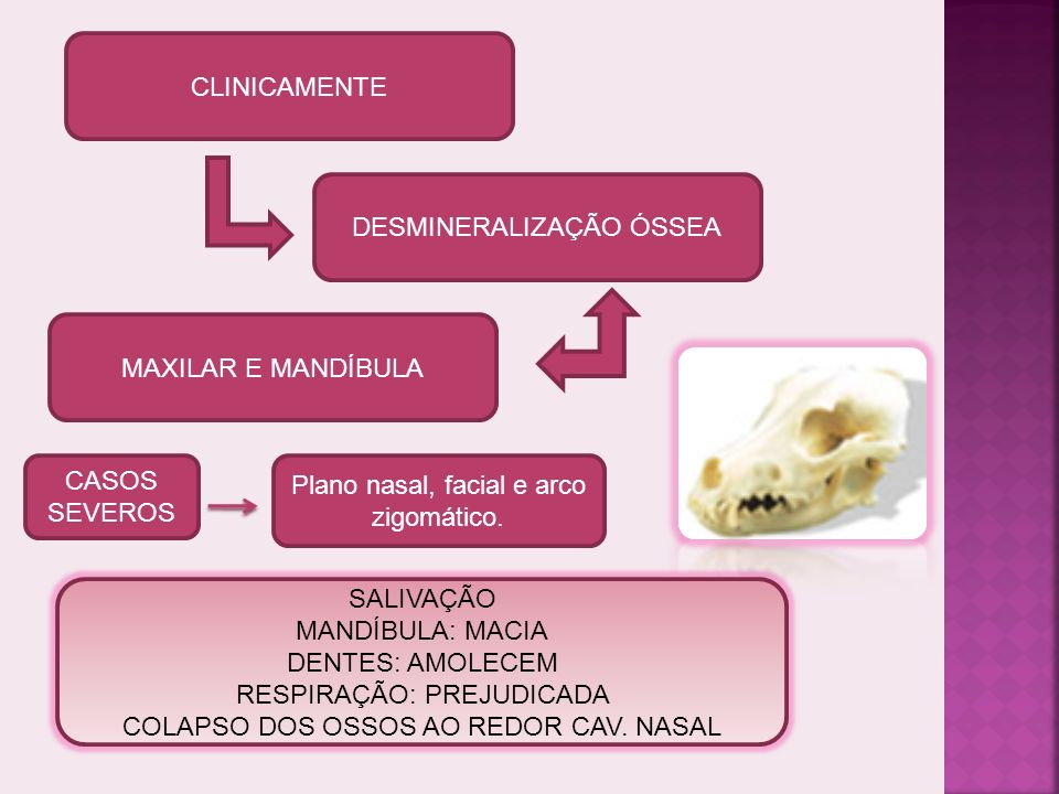 Paratireóide: aumento da secreção de PTH.(IRC)- Alteração metabolismo do Ca++ (Hipocalcemia).