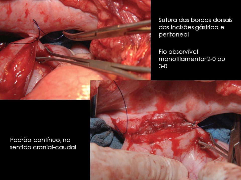 Sutura das bordas dorsais das incisões gástrica e peritoneal Padrão contínuo, no sentido cranial-caudal Fio absorvível monofilamentar 2-0 ou 3-0