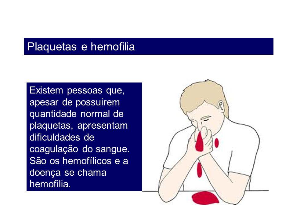 Plaquetas e hemofilia Existem pessoas que, apesar de possuirem quantidade normal de plaquetas, apresentam dificuldades de coagulação do sangue. São os