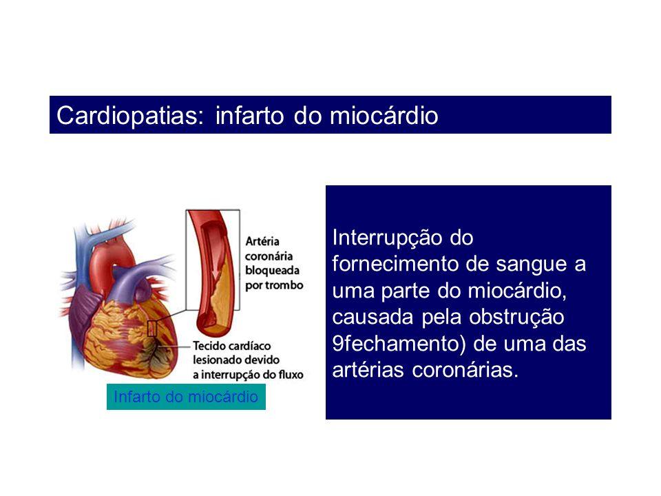 Cardiopatias: infarto do miocárdio Interrupção do fornecimento de sangue a uma parte do miocárdio, causada pela obstrução 9fechamento) de uma das arté