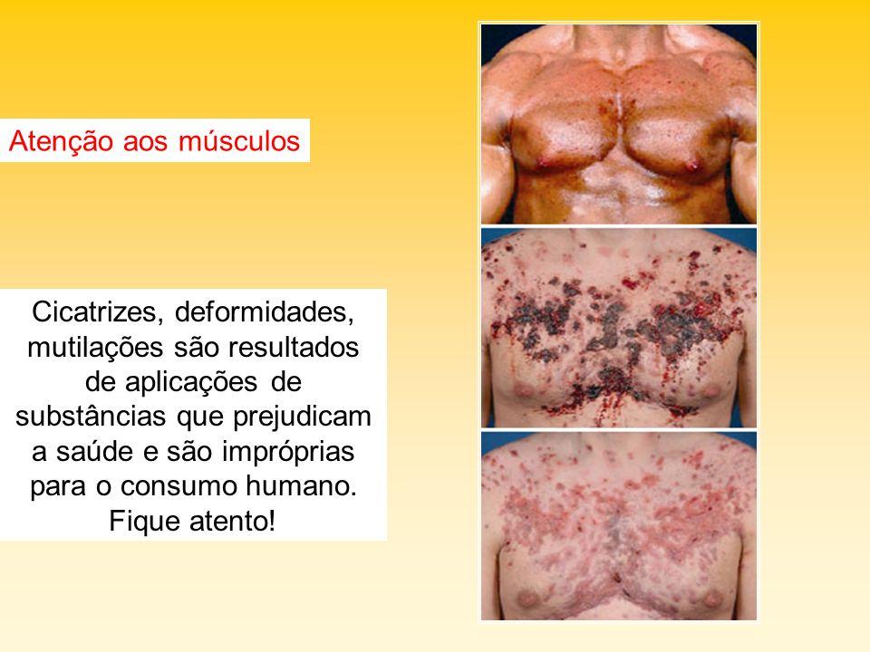 Atenção aos músculos Cicatrizes, deformidades, mutilações são resultados de aplicações de substâncias que prejudicam a saúde e são impróprias para o c