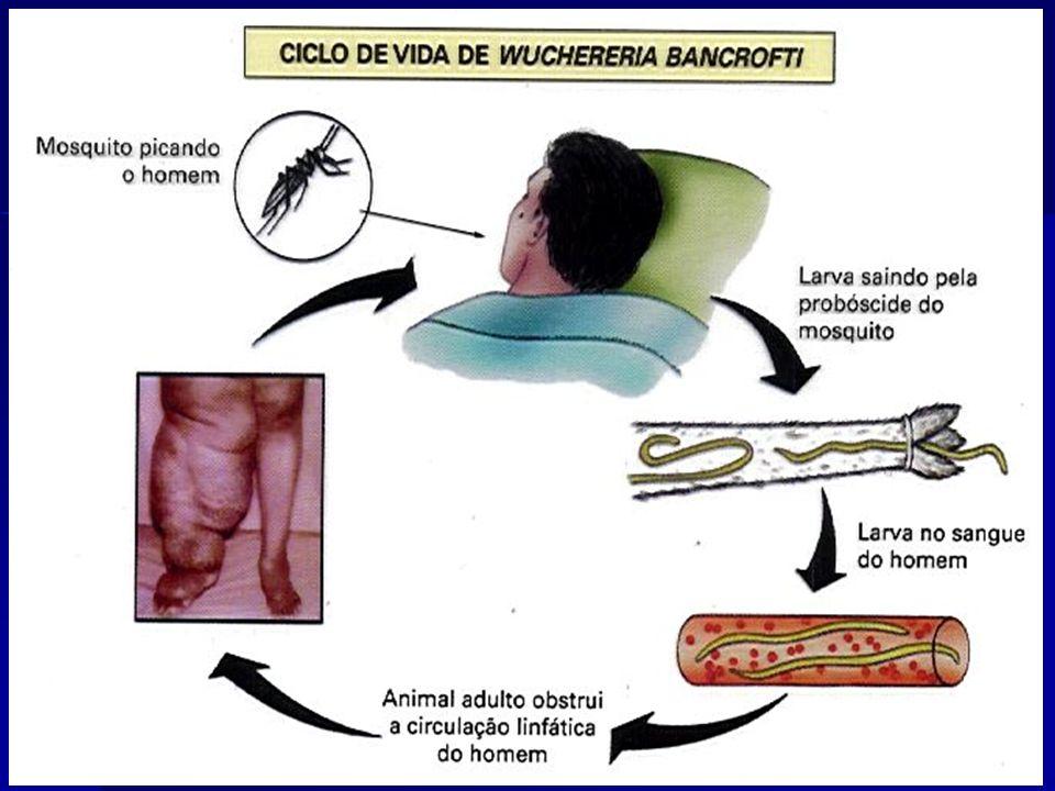 ELEFANTÍASE (Filariose) Wuchereria bancrofti. Agentes transmissores: mosquitos Aedes, Anopheles, Culex e Mansonia.