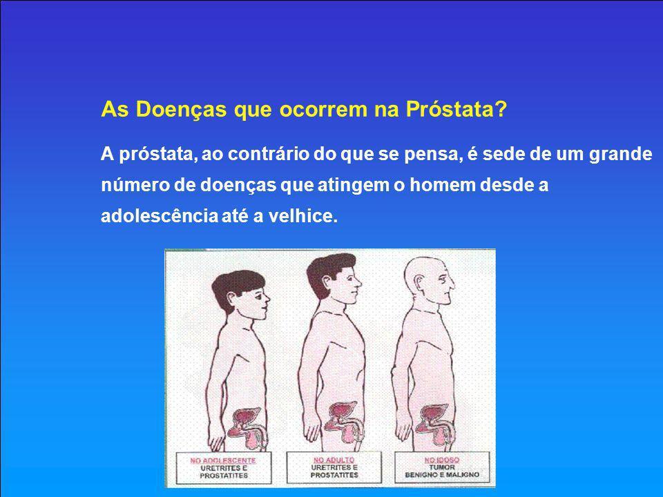 As Doenças que ocorrem na Próstata Prostatite Trata-se de uma infecção que chega a próstata, na maioria das vezes pela uretra, algum tempo após uma uretrite purulenta ou não, podendo também vir pelo sangue de um outro foco infeccioso que está à distância (uma sinusite, por exemplo).