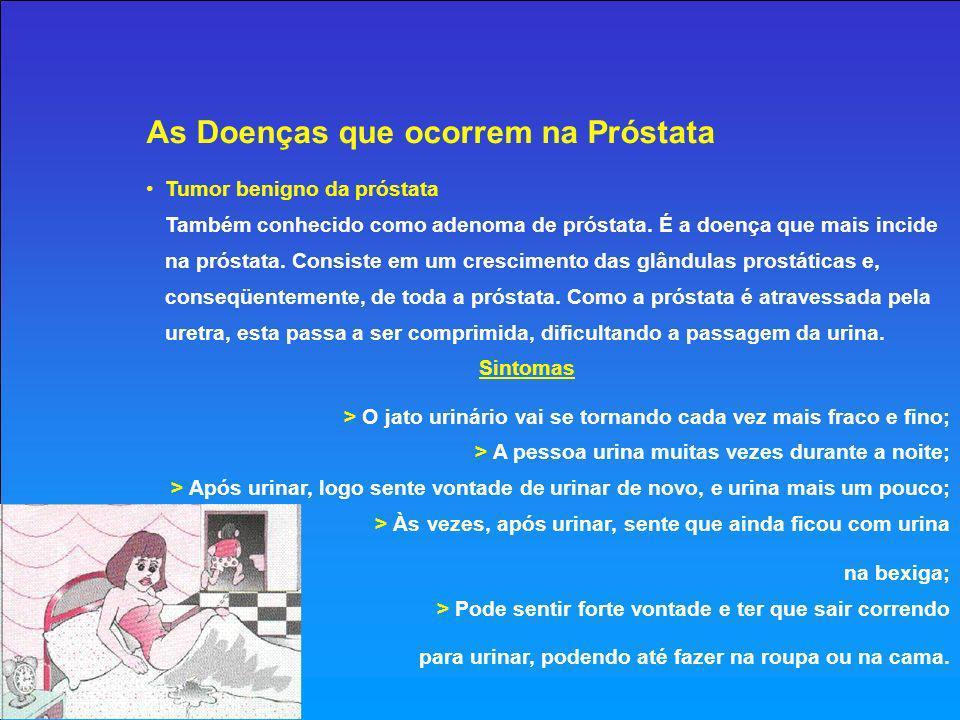 Disseminação O câncer da próstata, quando avança, pode se disseminar (espalhar-se) pelo corpo, vindo a atingir outros órgãos, e principalmente os ossos.