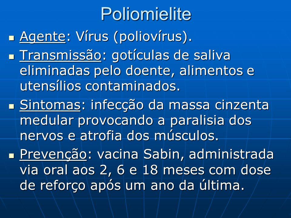 Poliomielite Agente: Vírus (poliovírus). Agente: Vírus (poliovírus). Transmissão: gotículas de saliva eliminadas pelo doente, alimentos e utensílios c