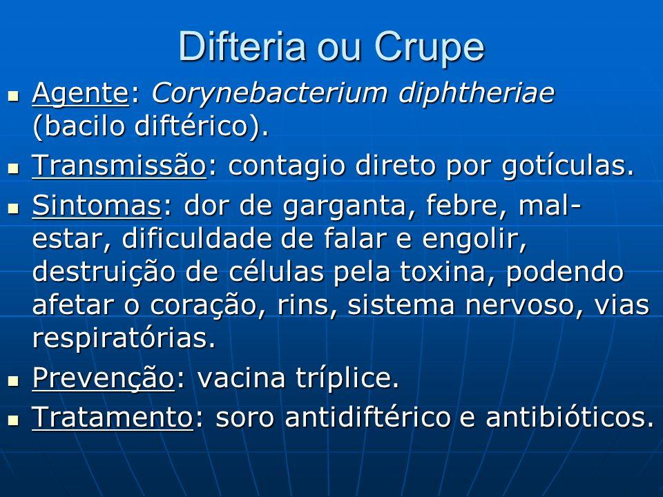 Difteria ou Crupe Agente: Corynebacterium diphtheriae (bacilo diftérico). Agente: Corynebacterium diphtheriae (bacilo diftérico). Transmissão: contagi
