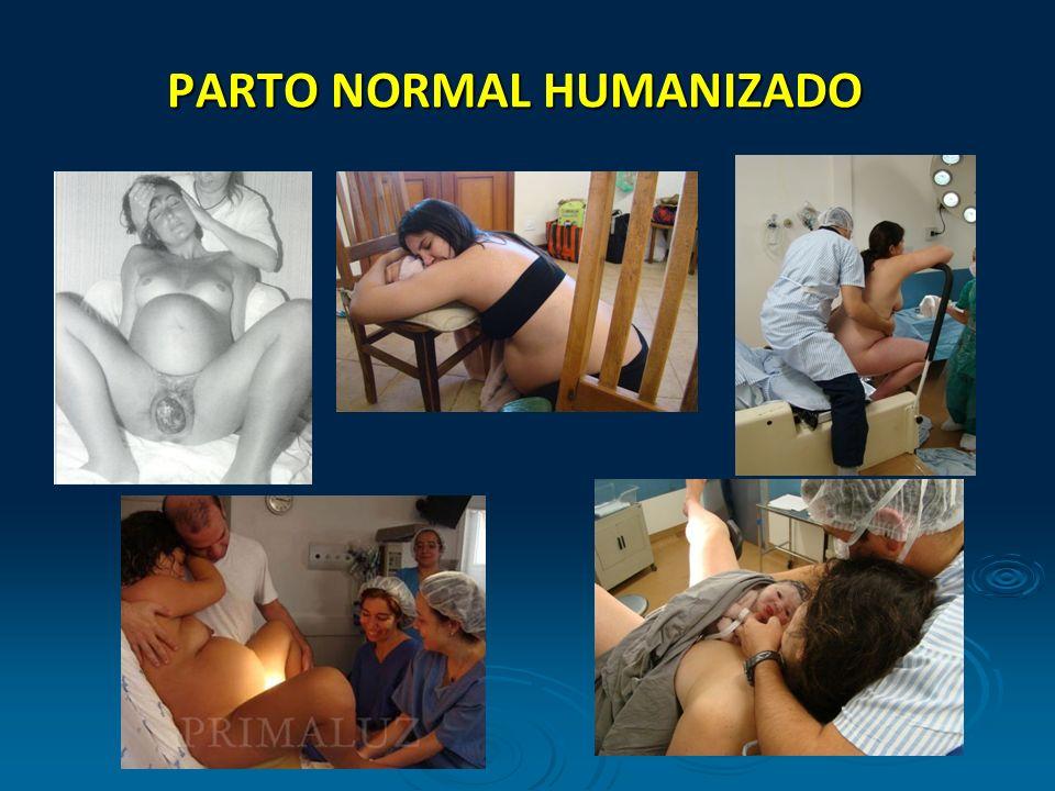PARTO NORMAL HUMANIZADO