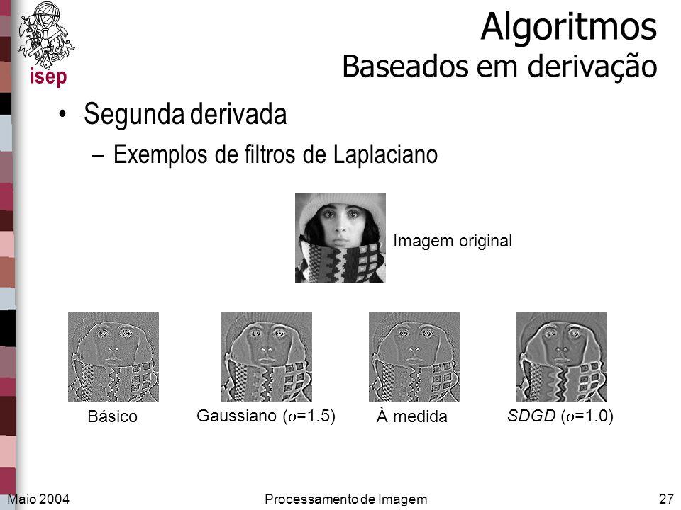 isep Maio 2004Processamento de Imagem27 Algoritmos Baseados em derivação Segunda derivada –Exemplos de filtros de Laplaciano Imagem original Básico Ga