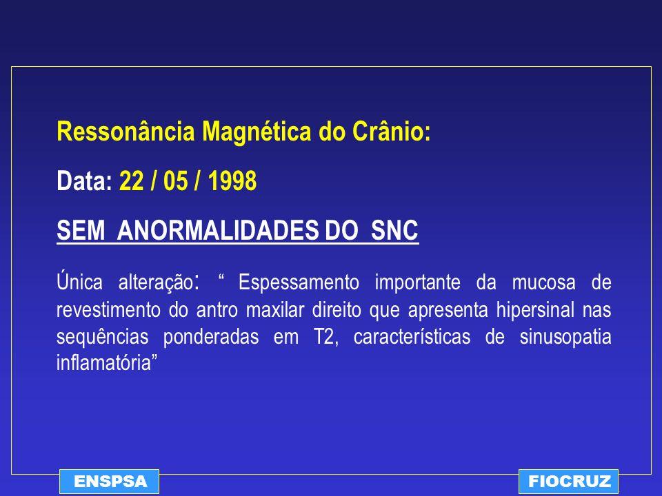 ENSPSAFIOCRUZ Ressonância Magnética do Crânio: Data: 22 / 05 / 1998 SEM ANORMALIDADES DO SNC Única alteração : Espessamento importante da mucosa de re