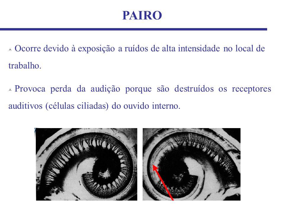 Ocorre devido à exposição a ruídos de alta intensidade no local de trabalho. PAIRO Provoca perda da audição porque são destruídos os receptores auditi