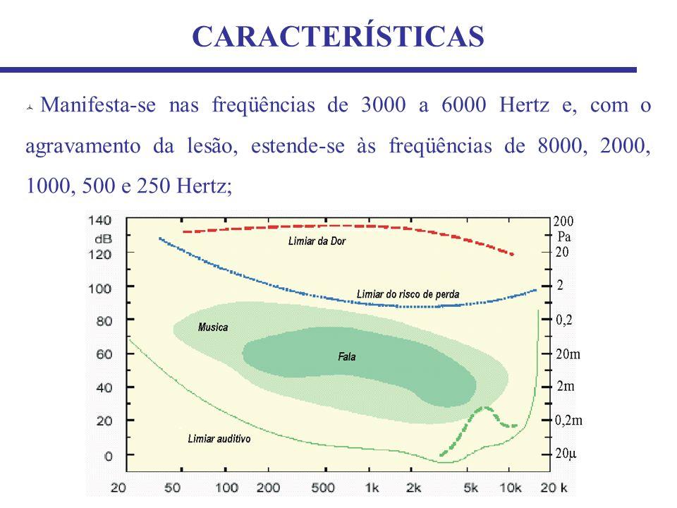 Manifesta-se nas freqüências de 3000 a 6000 Hertz e, com o agravamento da lesão, estende-se às freqüências de 8000, 2000, 1000, 500 e 250 Hertz; CARACTERÍSTICAS