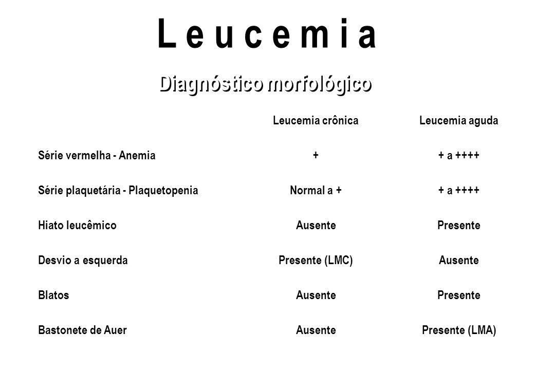 L e u c e m i a Leucemia crônicaLeucemia aguda Série vermelha - Anemia++ a ++++ Série plaquetária - PlaquetopeniaNormal a ++ a ++++ Hiato leucêmicoAus