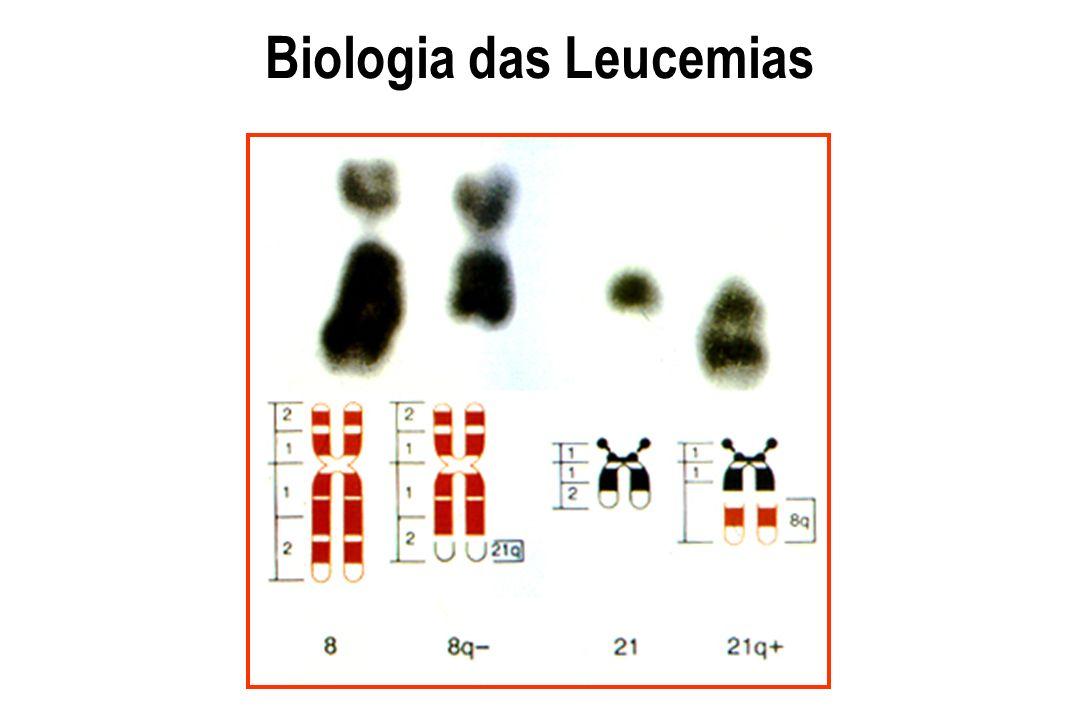 L e u c e m i a Leucemia crônicaLeucemia aguda Série vermelha - Anemia++ a ++++ Série plaquetária - PlaquetopeniaNormal a ++ a ++++ Hiato leucêmicoAusentePresente Desvio a esquerdaPresente (LMC)Ausente BlatosAusentePresente Bastonete de AuerAusentePresente (LMA) Diagnóstico morfológico