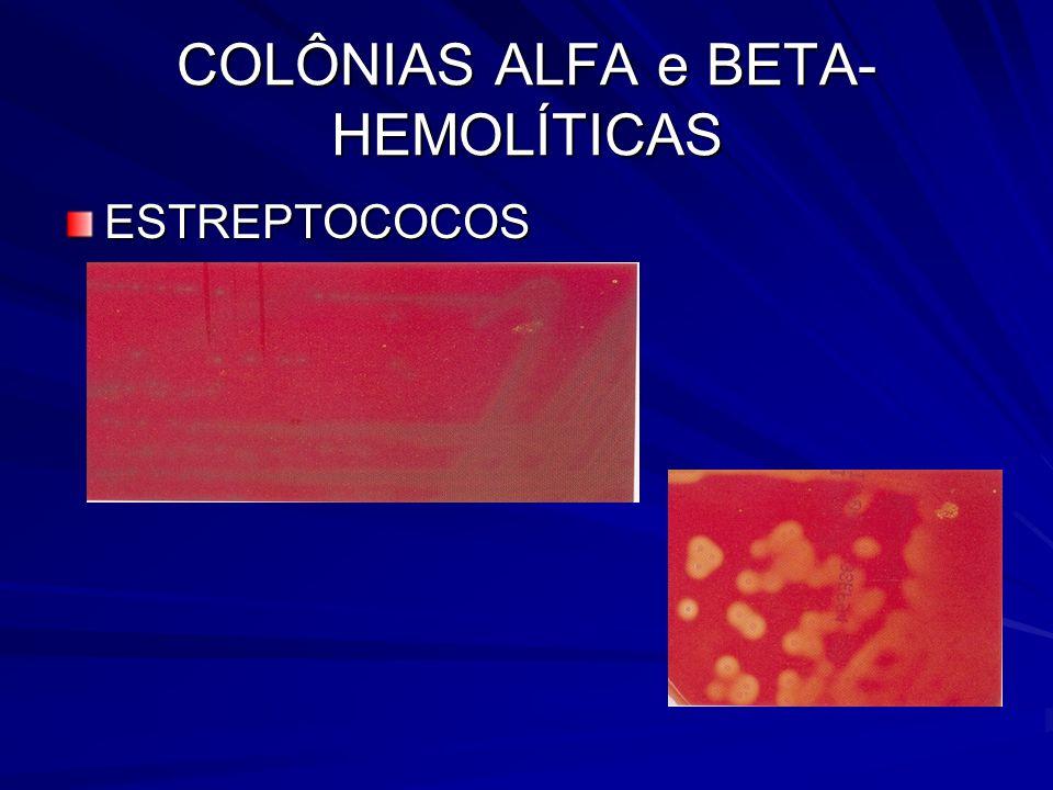 COLÔNIAS ALFA e BETA- HEMOLÍTICAS ESTREPTOCOCOS