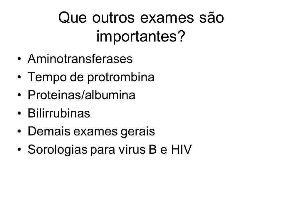Que outros exames são importantes? Aminotransferases Tempo de protrombina Proteinas/albumina Bilirrubinas Demais exames gerais Sorologias para virus B