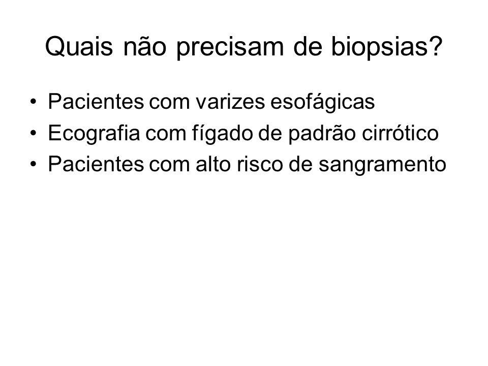 Quais não precisam de biopsias? Pacientes com varizes esofágicas Ecografia com fígado de padrão cirrótico Pacientes com alto risco de sangramento