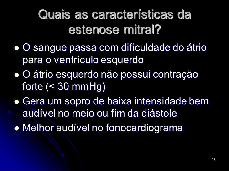 17 Quais as características da estenose mitral? O sangue passa com dificuldade do átrio para o ventrículo esquerdo O sangue passa com dificuldade do á
