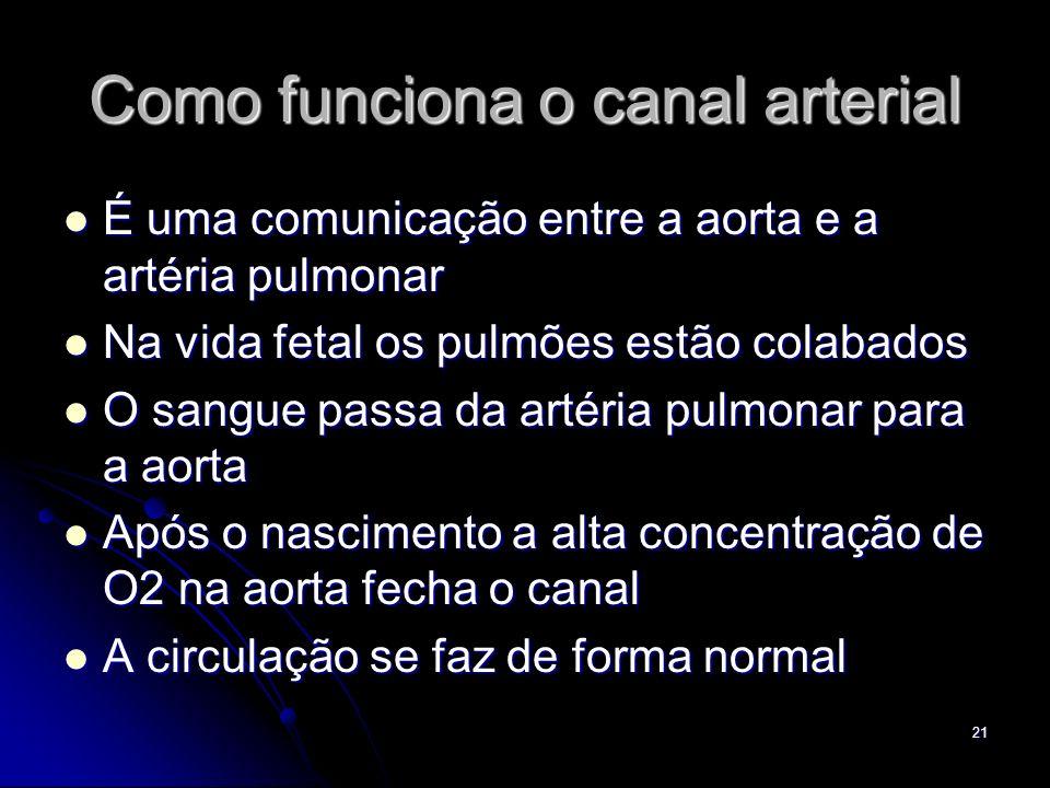 21 Como funciona o canal arterial É uma comunicação entre a aorta e a artéria pulmonar É uma comunicação entre a aorta e a artéria pulmonar Na vida fe