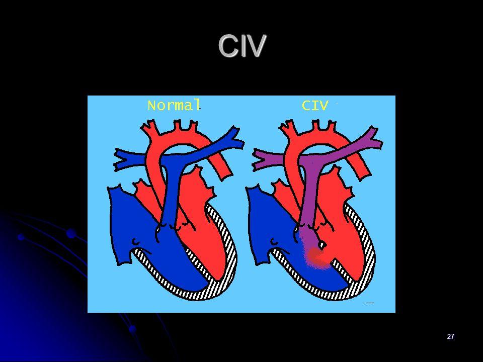 27 CIV