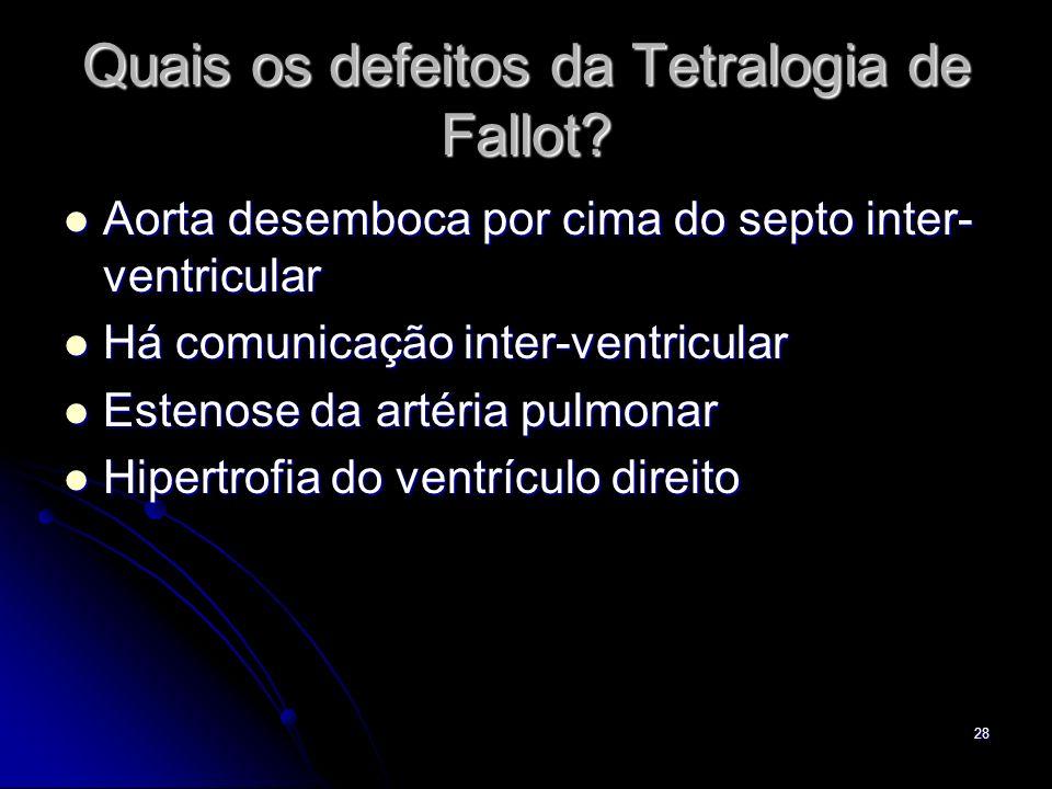 28 Quais os defeitos da Tetralogia de Fallot? Aorta desemboca por cima do septo inter- ventricular Aorta desemboca por cima do septo inter- ventricula